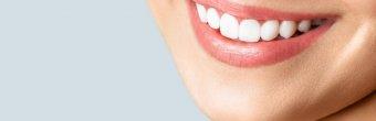 Dental lamina ile dişleri kesmeden şekillendirme yapıyoruz!