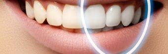Diş beyazlatma tedavileri ile beyaz ve güçlü dişlere sahip olun!
