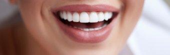 Estetik diş hekimliği hakkında merak edilenler
