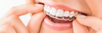 Invisalign tedavisi: Çarpık dişlere telsiz çözüm