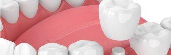 Porselen kron nedir? Tedavi süreci nasıldır?
