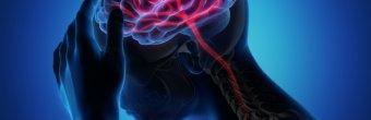 Beyin kanamalarında hastaya yaklaşım