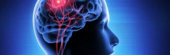 Nöronavigasyon ile beyin tümörü ameliyatları