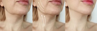 Kırışıklık ve sarkma tedavisi nasıl yapılır?