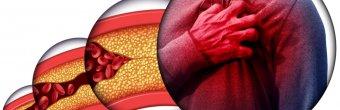 Kolesterol nedir ve nasıl tedavi edilir?