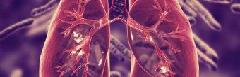 Tüberküloz (Verem) nedir? Belirtileri ve tedavi yöntemleri