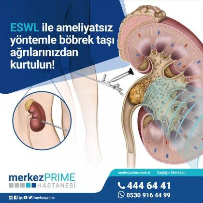 ESWL2