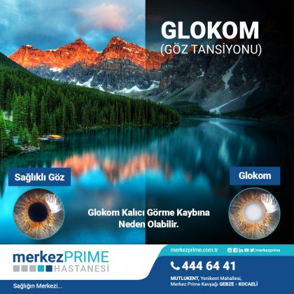 GLOKOM