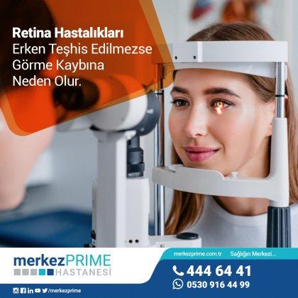 Retina Hastalıkları